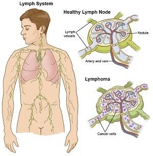 лимфатическая система, лечение лимфомы Ходжкина в Германии