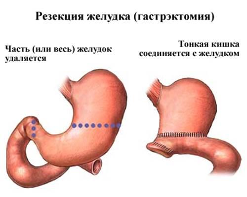 гастрэктомия при лечении рака желудка в израиле