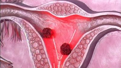 Лечение рака матки в Германии