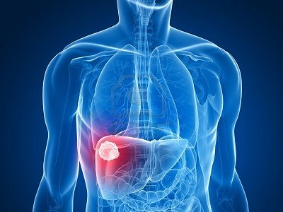 опухоль печени, рак печени, лечение рака печени в Израиле