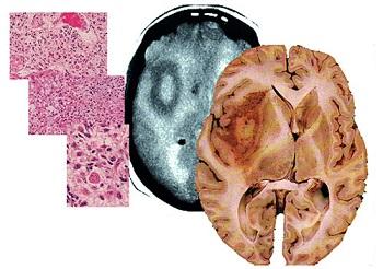 глиобластома, лечение глиобластомы в Израиле