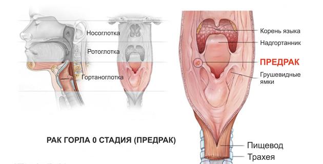 рак горла 0 стадия