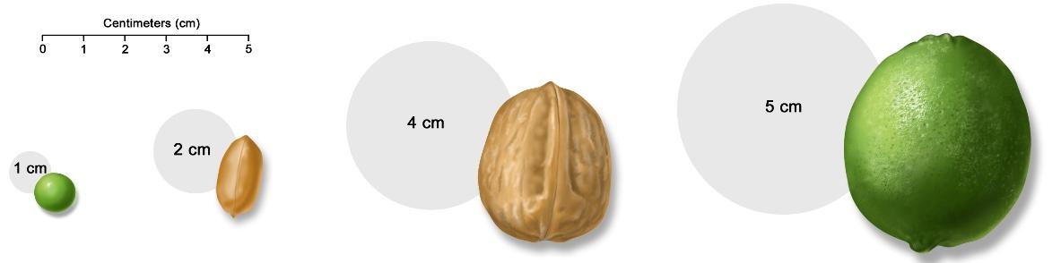 размер саркомы юинга на разных стадиях