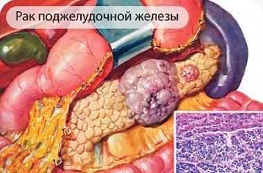 Лечение рака поджелудочной железы в Израиле