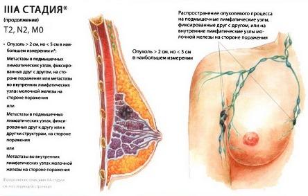 3А стадия рака груди