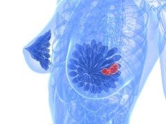 диагностика рака молочной железы, Диагностика рака груди
