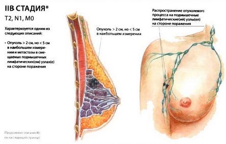 2В стадия рака груди