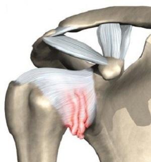 Замена плечевого сустава в Германии