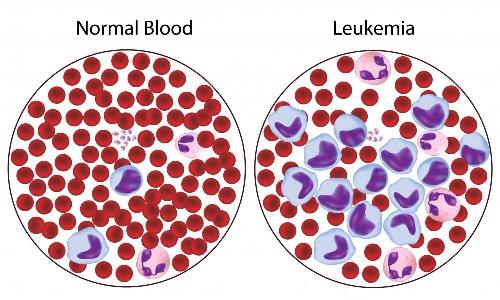лейкоз на клеточном уровне, лечение лейкемии в германии