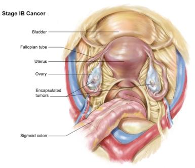 рак яичника 1В стадия