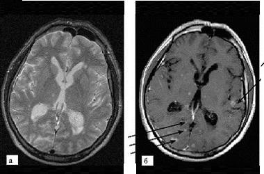 Лечение метастазов в мозге в Израиле