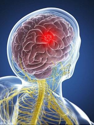 Лечение опухолей мозга в Израиле: цена 21 6 дол