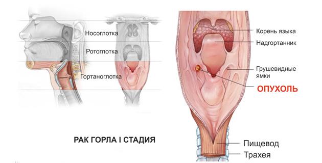 рак горла 1 стадия