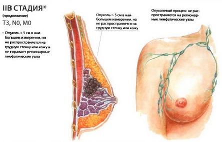 2В стадия рака молочной железы