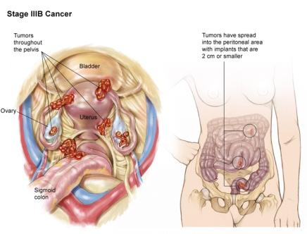 рак яичника 3В стадия