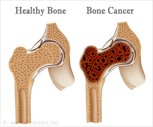 Лечение рака костей в Израиле