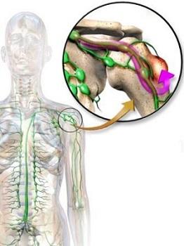 Лечение метастазов в костях в Израиле