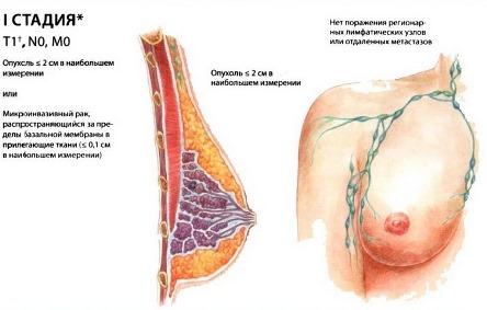 рак груди 1 стадия