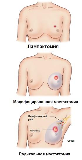 хирургическое лечение рака груди в Израиле