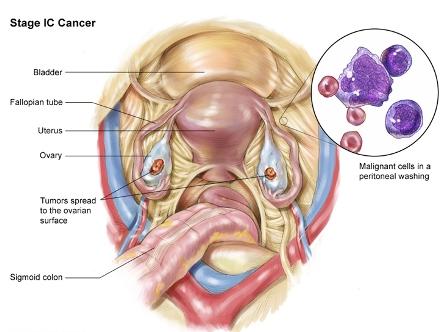 рак яичника 1С стадия