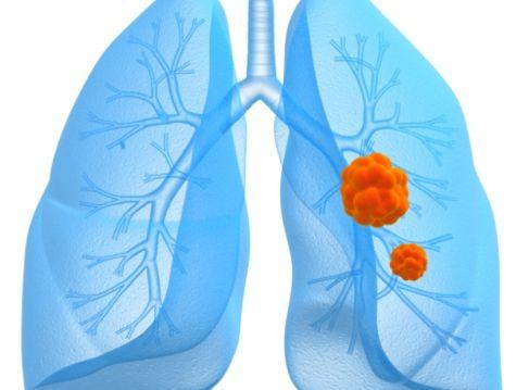 Лечение рака легких в Израиле, рак легких, исследования