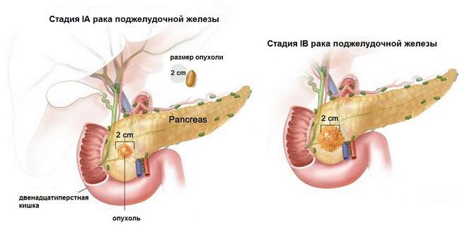 1 стадия рака поджелудочной железы
