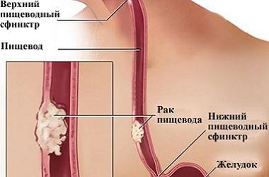 Лечение рака пищевода в Израиле