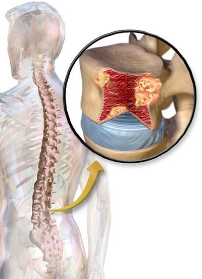 Заболевание костного мозга название и как лечить