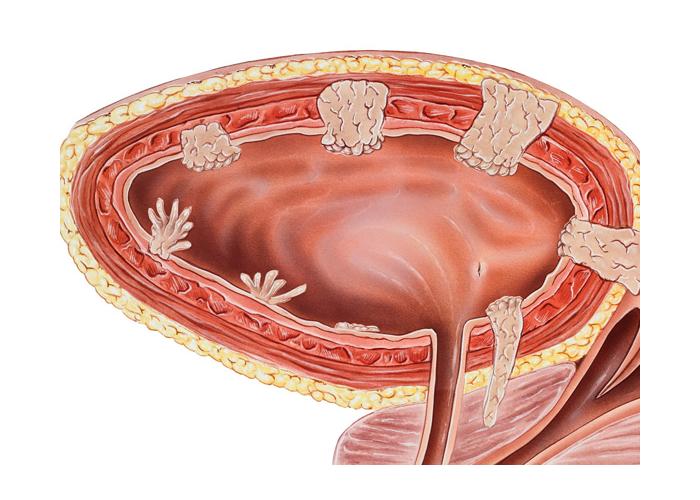 Лечение переходно-клеточного рака мочевого пузыря в Израиле