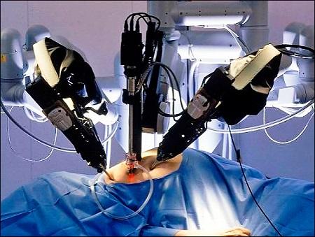 операция с роботом да винчи