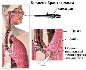 диагностика рака легких в израиле, биопсия легкого