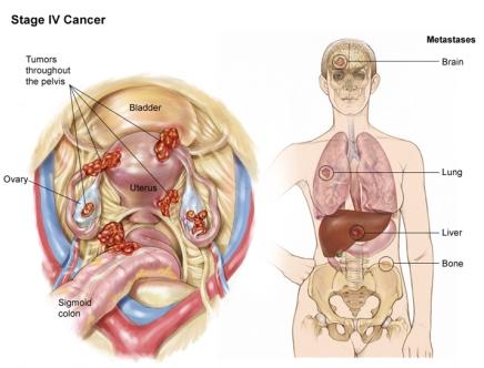 рак яичников 4 стадия