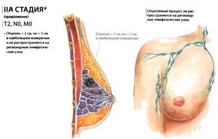 рак груди 2А стадия