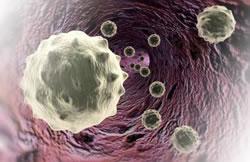 лимфома в германии, лечение лимфомы в германии, неходжкинская лимфома в германии, лечение неходжкинской лимфомы в германии