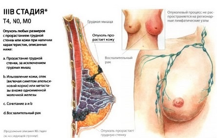 3В стадия рака мж