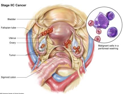 рак яичников 2C стадия