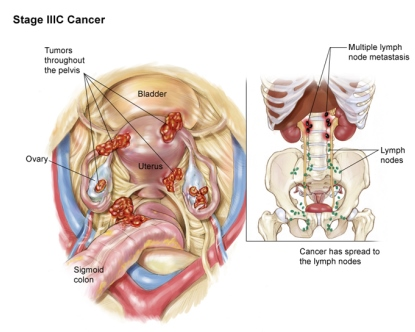 рак яичников 3C стадия