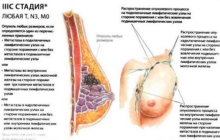 3С стадия рака груди