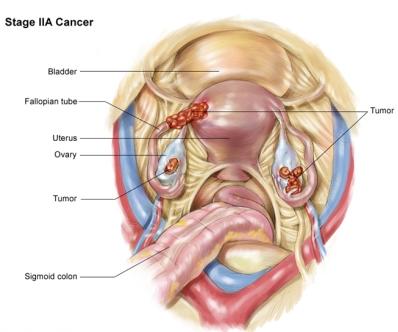 рак яичников 2A стадия