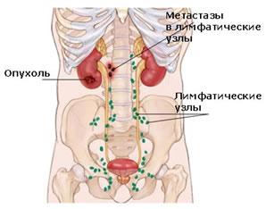 метастазы в лимфатических узлах