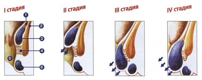 стадии рака ануса