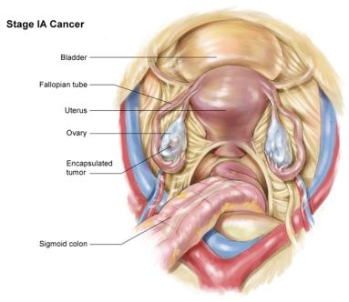 рак яичников 1A стадия