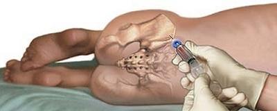 забор костного мозга