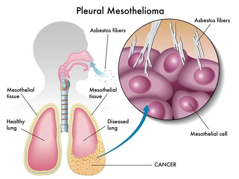 рак плевры, лечение мезотелиомы в германии