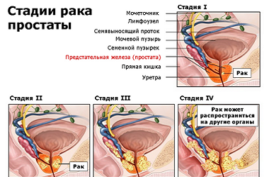 Лечение рака предстательной железы (простаты) в Израиле