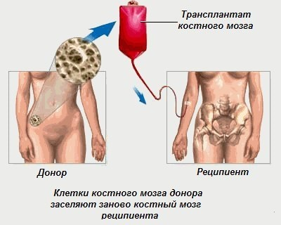 как проходит трансплантация костного мозга