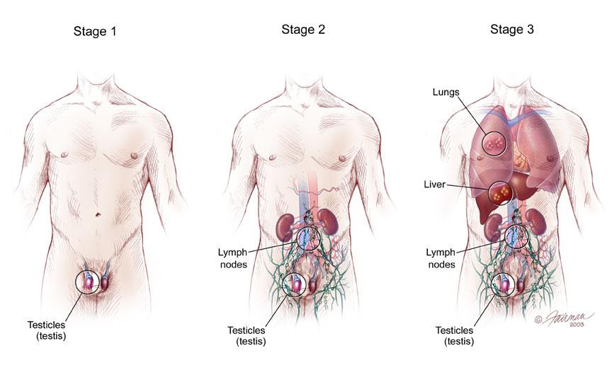 стадии рака яичка