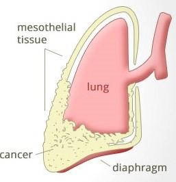 рак плевры