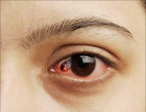 Лечение рака глаз в Израиле