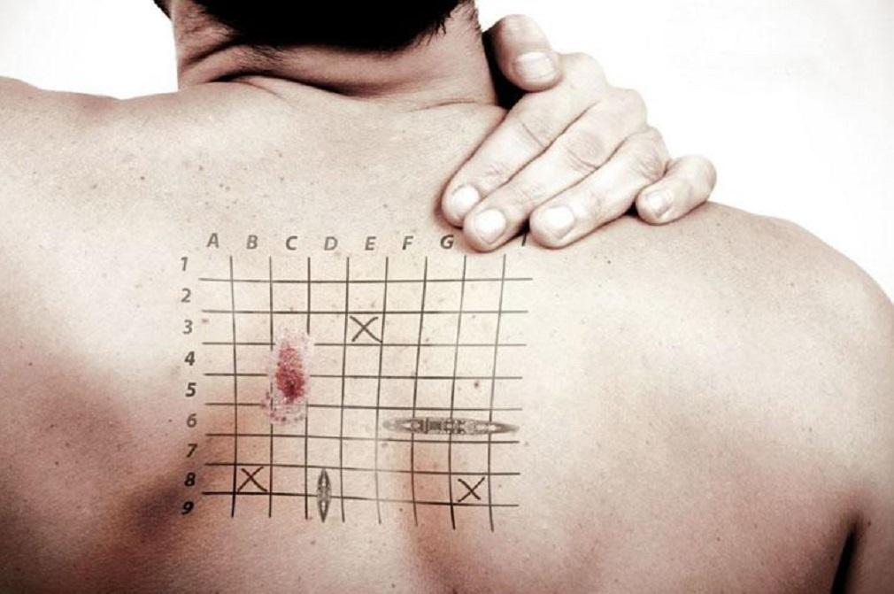 Радиоактивный пластырь против рака кожи